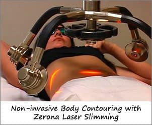 Lipo without Surgery - Zerona Laser Slimming